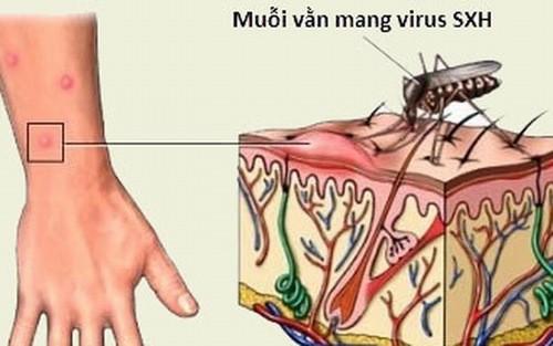 Muỗi là nguyên nhân gây sốt xuất huyết
