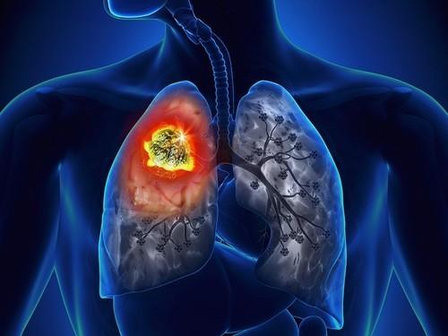 Mắc ung thư chỉ vì hít phải thuốc lá