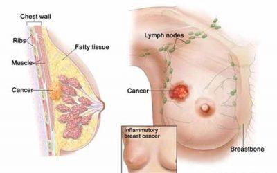 Tầm soát ung thư bao nhiêu tiền?