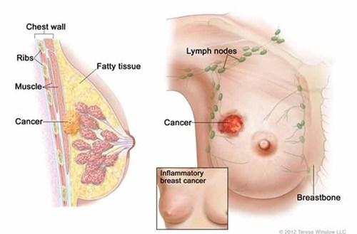 Tầm soát ung thư bao nhiêu tiền