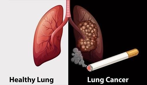 Ung thư phổi là một trong những bệnh ung thư nên tầm soát, đặc biệt ở những người hút thuốc lá nhiều năm