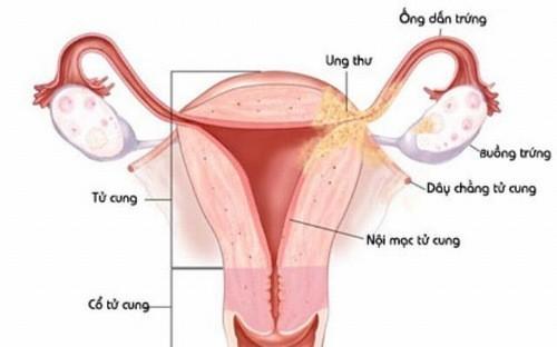 Viêm nội mạc cổ tử cung cũng có thể là nguyên nhân gây hiện tượng tiểu buốt