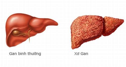 Xơ gan là bệnh lý nguy hiểm cần được phát hiện sớm và điều trị hiệu quả
