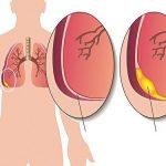 Tràn dịch màng phổi có lây không?