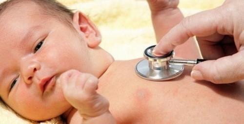Cần đưa trẻ đến khám để chẩn đoán triệu chứng vàng da