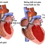 Từ A đến Z bệnh suy tim