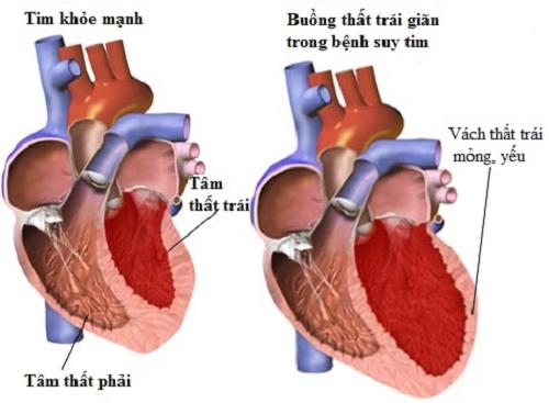 Suy tim là tổn thương tim nghiêm trọng cần được phát hiện sớm và điều trị kịp thời hiệu quả