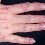 Từ A đến Z về bệnh viêm da cơ