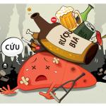 Viêm gan do rượu – triệu chứng và cách điều trị