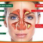 Viêm mũi xoang mạn tính và những điều cần biết