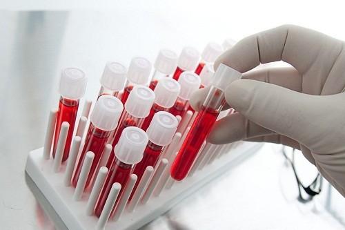Xét nghiệm máu tầm soát ung thư