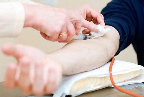 Xét nghiệm sốt xuất huyết cần được thực hiện ngay khi người bệnh xuất hiện triệu chứng