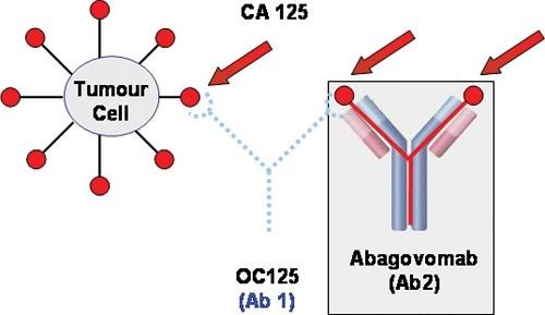 CA 125 là chất chỉ điểm đối với ung thư buồng trứng