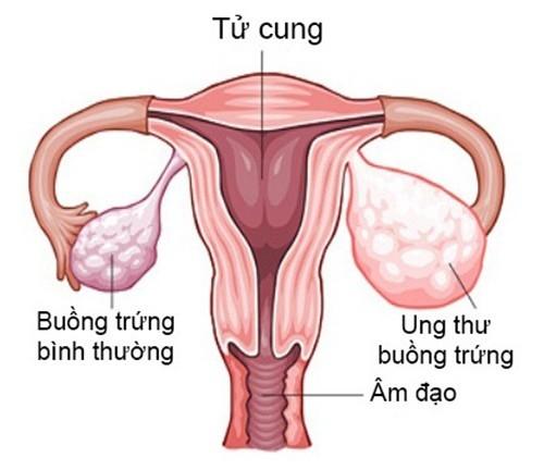Xét nghiệm ung thư buồng trứng