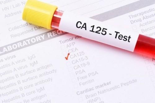Xét nghiệm máu tìm dấu ấn ung thư CA 125 giúp chẩn đoán sớm ung thư buồng trứng