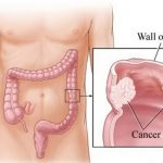Xét nghiệm ung thư đại tràng