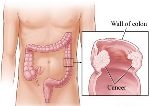 Ung thư đại tràng có khả năng điều trị thành công cao nếu phát hiện sớm