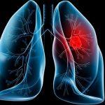 Xét nghiệm ung thư phổi