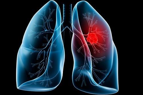 Xét nghiệm bệnh ung thư phổi