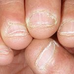 Biểu hiện nấm móng tay bạn cần chú ý