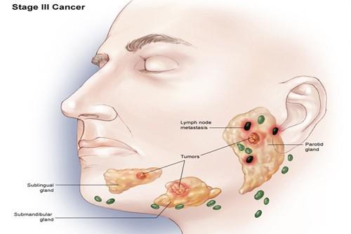 U tuyến nước bọt chủ yếu là lành tính và chỉ có khoảng 20% các u tuyến nước bọt là ác tính.