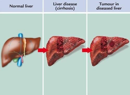 Xơ gan cần được phát hiện sớm và điều trị kịp thời hiệu quả