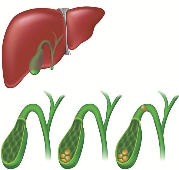 Nguyên nhân chủ yếu gây viêm túi mật cấp là do sỏi túi mật
