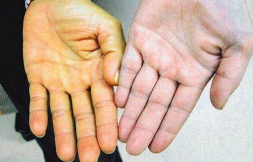 Vàng da... là một trong những dấu hiệu cảnh báo ung thư gan