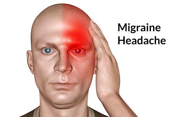 Thiếu ngủ hay ngủ quá nhiều cũng có thể gây ra đau nửa đầu