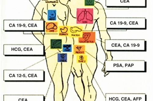 Chỉ số CEA tăng cao trong nhiều trường hợp như mắc ung thư đại trực tràng, ung thư tuyến tụy, ung thư vú...