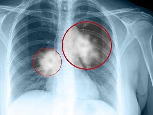Chụp X-quang phổi là phương pháp thường được chỉ định để chẩn đoán ung thư phổi