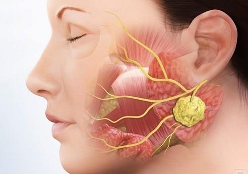 Ung thư tuyến nước bọt là bệnh hiếm gặp nhưng rất nguy hiểm nên cần được phát hiện và điều trị sớm.