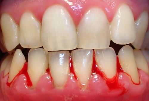 Sốt xuất huyết gây chảy máu chân răng