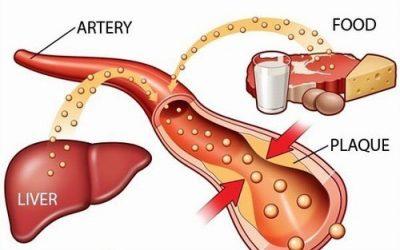 Chỉ số cholesterol là gì?
