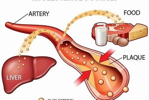 Cholesterol là thành phần quan trọng trong máu