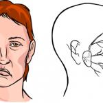 Đáng ngại tình trạng tổn thương dây thần kinh sọ não