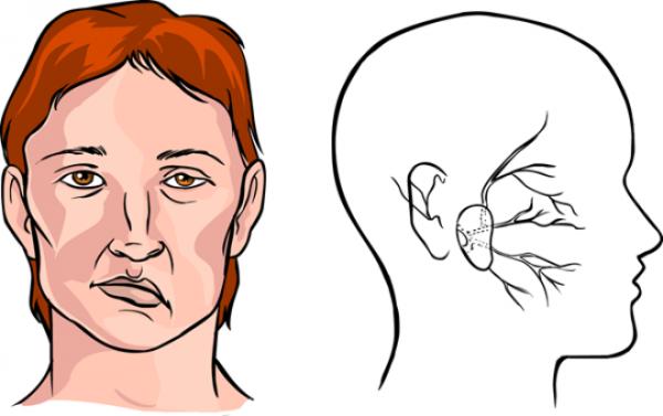 Viêm hoặc tổn thương các dây thần kinh sọ não là một trong những biểu hiện tổn thương khu trú của hệ thần kinh trung ương.