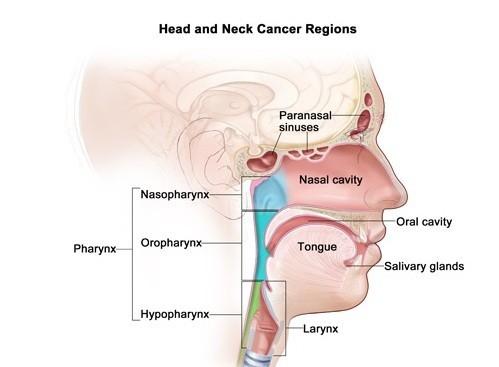 Ung thư đầu cổ là căn bệnh phổ biến hiện nay.