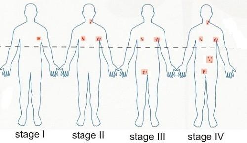 Ung thư hạch được chia thành 4 giai đoạn với mức độ bệnh khác nhau, gây nhiều biến chứng nguy hiểm