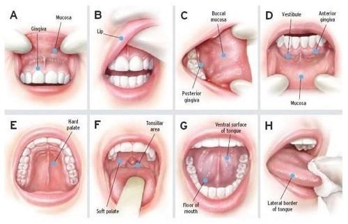 Trong ung thư khoang miệng, khối u có xuất hiện ở nhiều vị trí trong miệng như lưỡi, niêm mạc miệng...