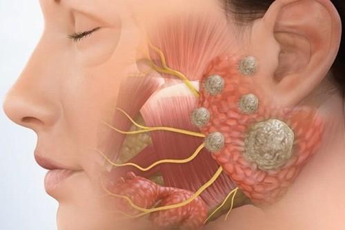 Ung thư tuyến nước bọt là một trong những bệnh ung thư vùng đầu cổ.