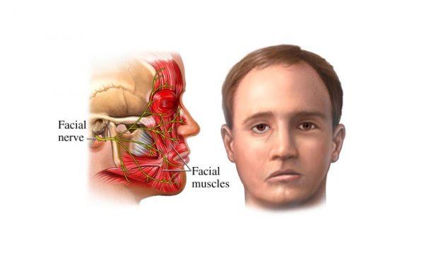 Người bệnh có triệu chứng hai bên mặt không cân đối, các cơ mặt bị kéo về bên lành, nhân trung bị kéo lệch về bên lành.