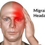Điều trị chứng đau đầu căn nguyên mạch máu