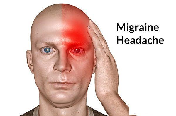Cơn đau Migraine có khởi phát thường ở một bên đầu, sau đó có thể lan sang hai bên.