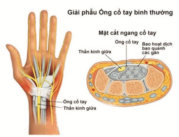 Hội chứng ống cổ tay là do dây thần kinh giữa bị chèn ép.