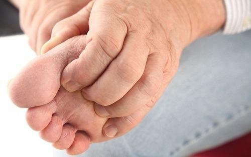 viêm khớp xảy ra ở một khớp hoặc một vài khớp chủ yếu ở ngón chân, khớp cổ chân, khớp gối