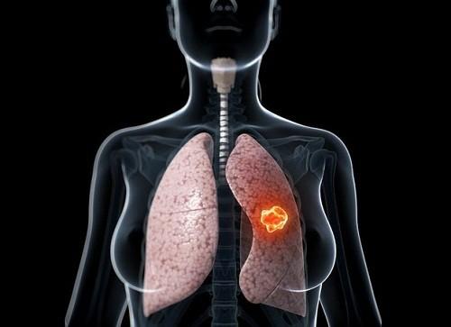 Chỉ số CYFRA 21-1 thường tăng cao ở những người mắc ung thư phổi