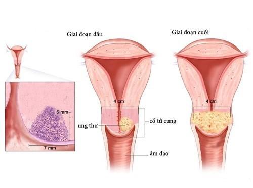 Ung thư cổ tử cung là bệnh lý nguy hiểm, thường gặp ở chị em phụ nữ.