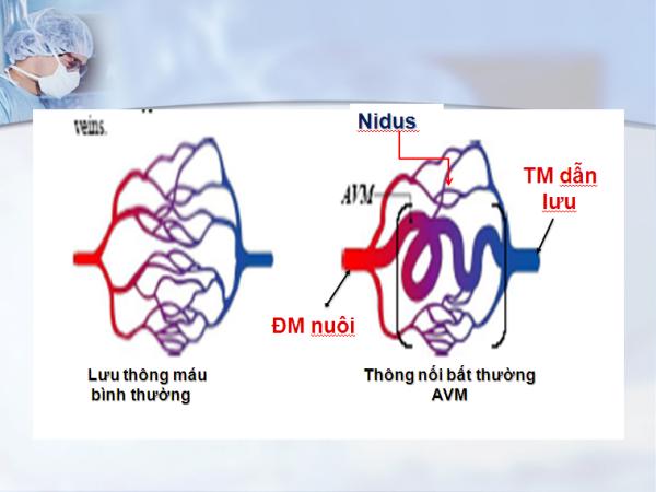 Bệnh dị dạng động tĩnh mạch (AVM) hay gặp ở hệ thống thần kinh trung ương nhưng cũng có thể gặp ở mọi ví trí trong cơ thể.