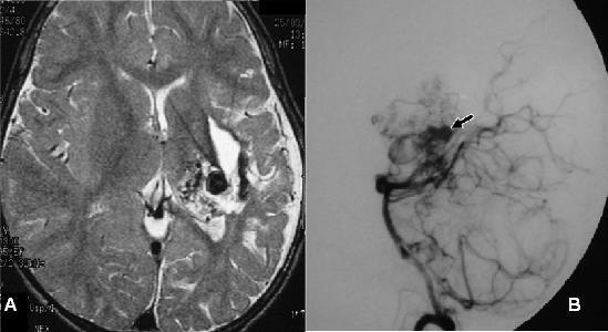 Việc chẩn đoán bệnh dị dạng động tĩnh mạch dựa vào các triệu chứng lâm sàng và các kĩ thuật thăm dò hình ảnh